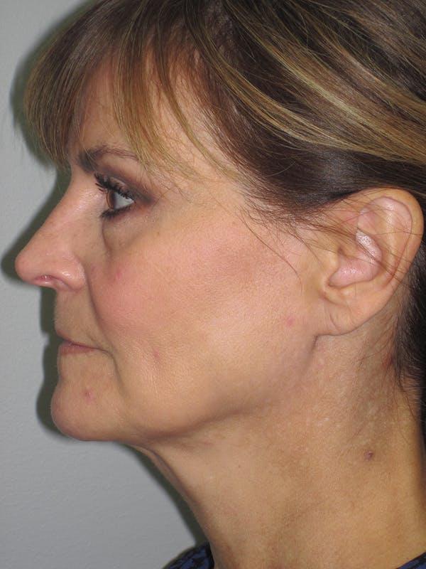 Facelift/Mini-Facelift Gallery - Patient 11110073 - Image 5