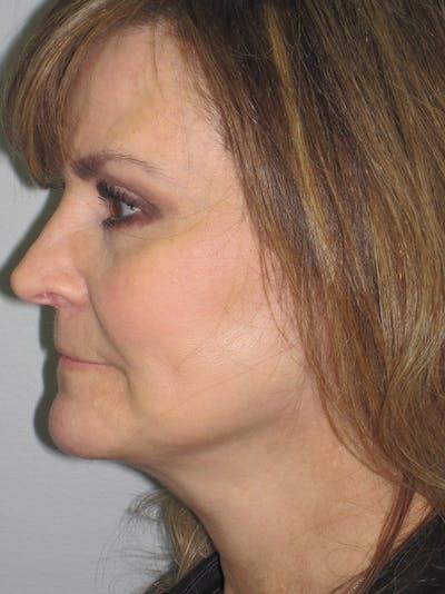 Facelift/Mini-Facelift Gallery - Patient 11110073 - Image 6