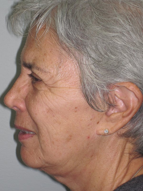 Laser Skin Resurfacing Gallery - Patient 11110081 - Image 5