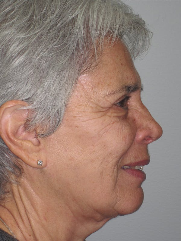 Laser Skin Resurfacing Gallery - Patient 11110081 - Image 3