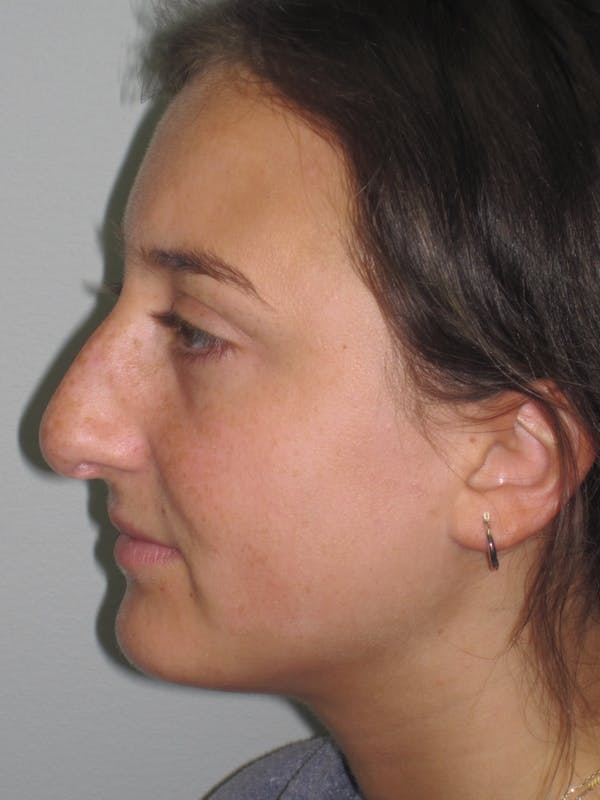 Before & After Droopy (Ptotic) Tip