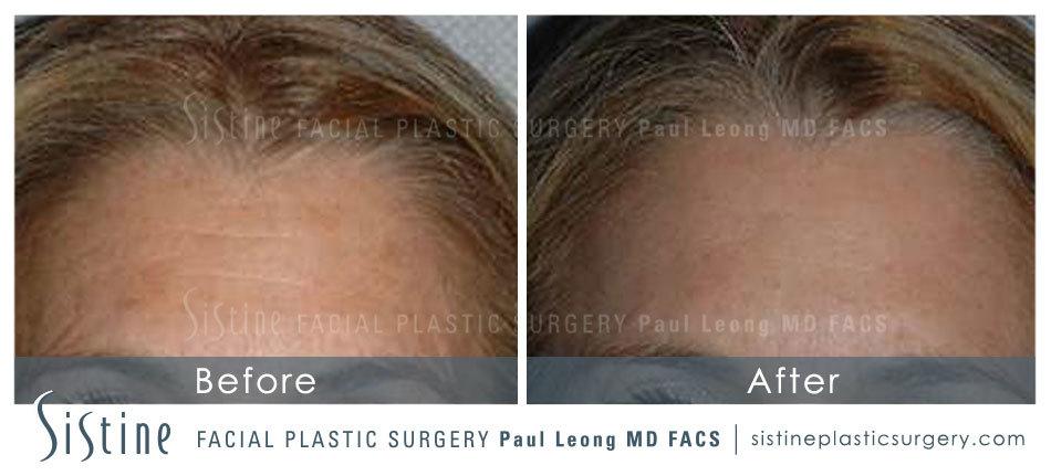 Sistine MediSpa Blog | When Should I Start Getting Botox?