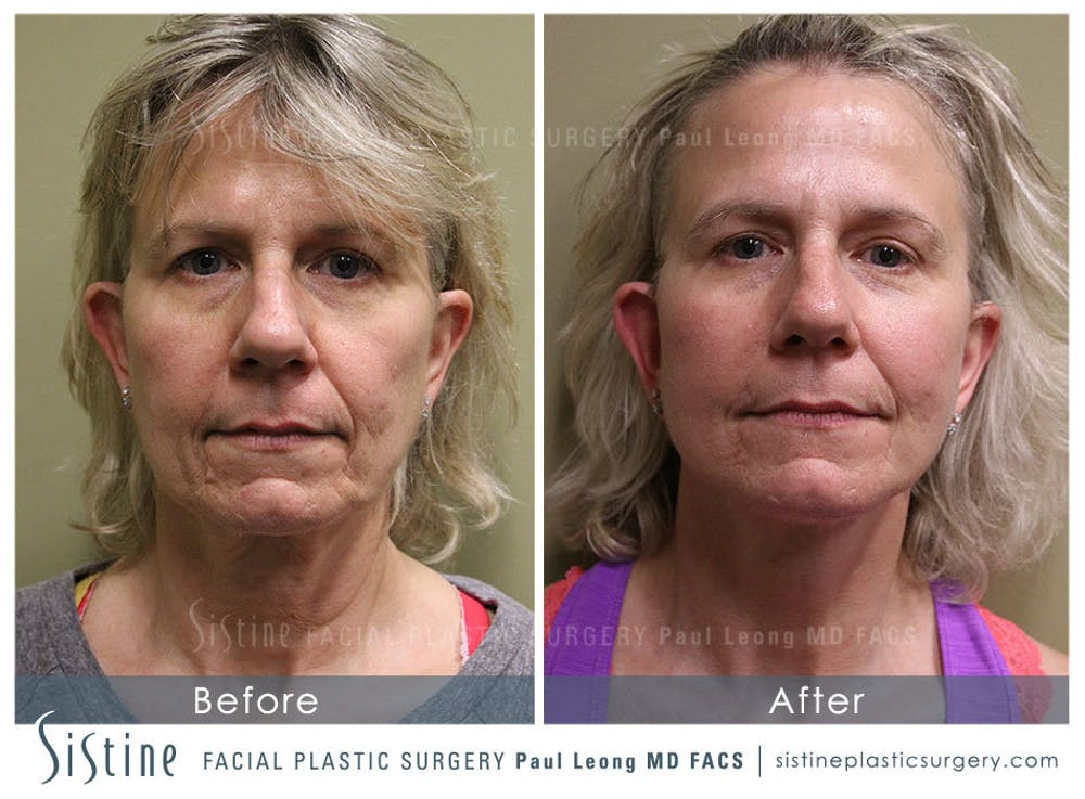 Facelift Gallery - Patient 4883637 - Image 1
