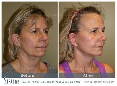 Facelift Gallery - Patient 4883637 - Image 2