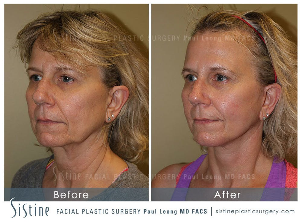 Facelift Gallery - Patient 4883637 - Image 3