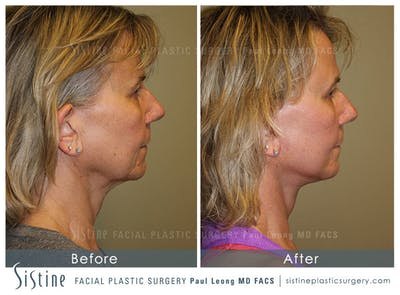 Facelift Gallery - Patient 4883637 - Image 4
