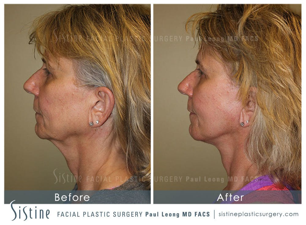 Facelift Gallery - Patient 4883637 - Image 5