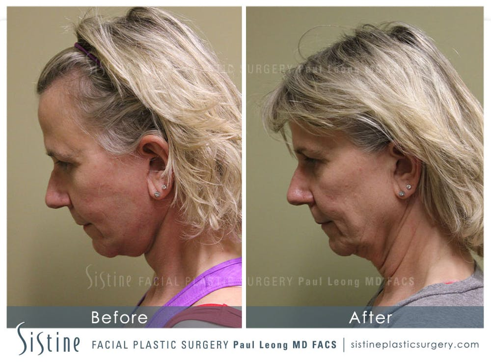 Facelift Gallery - Patient 4883637 - Image 6