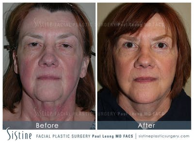Facelift Gallery - Patient 4883638 - Image 1