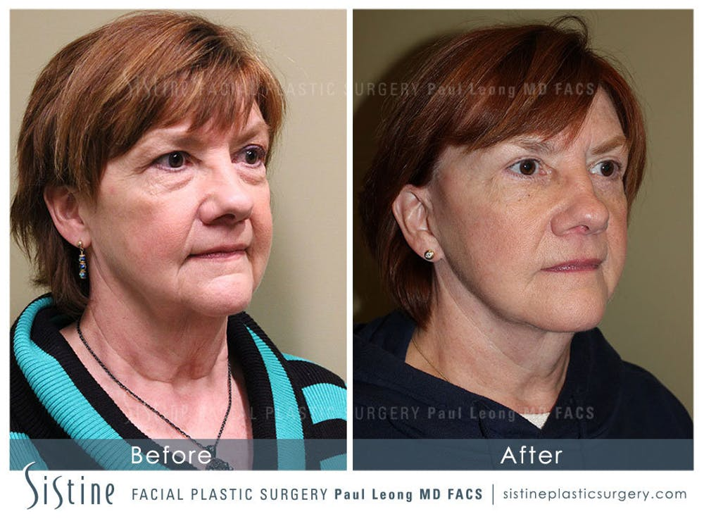 Facelift Gallery - Patient 4883638 - Image 2
