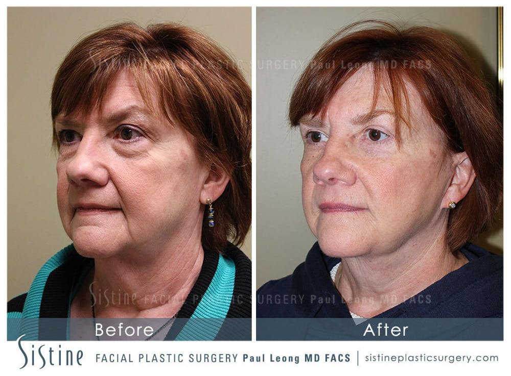 Facelift Gallery - Patient 4883638 - Image 3