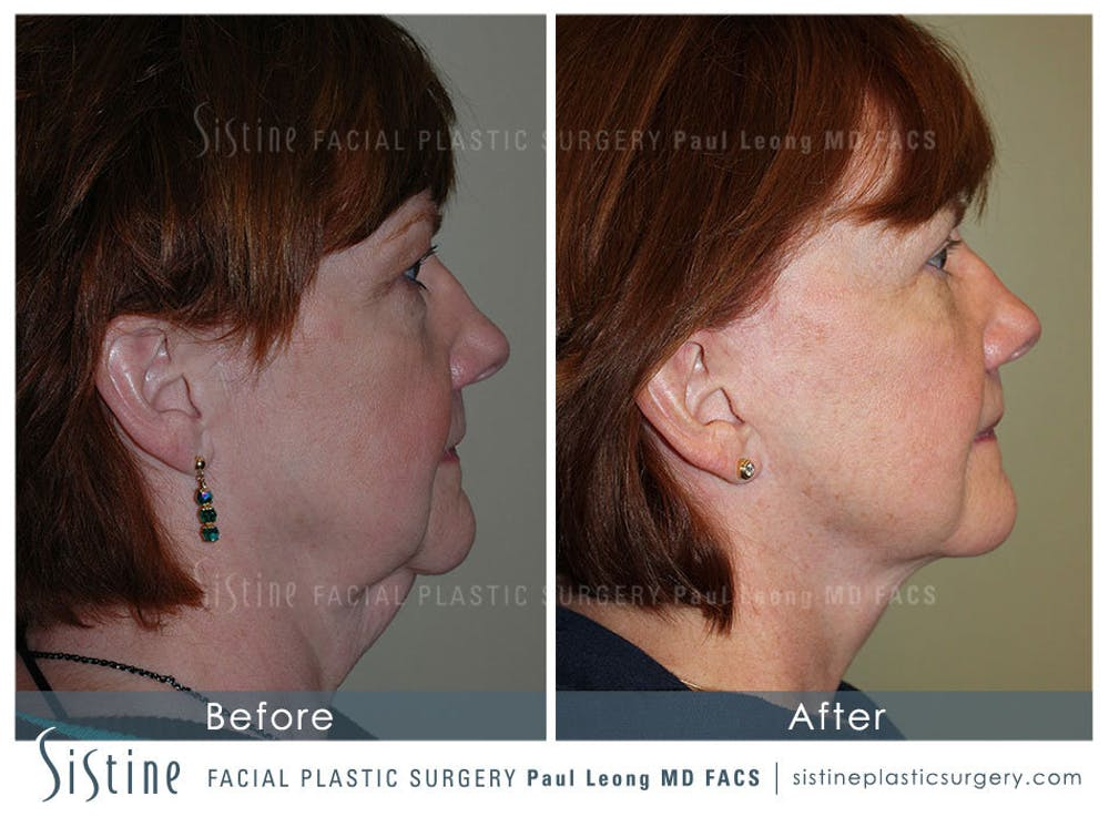 Facelift Gallery - Patient 4883638 - Image 4