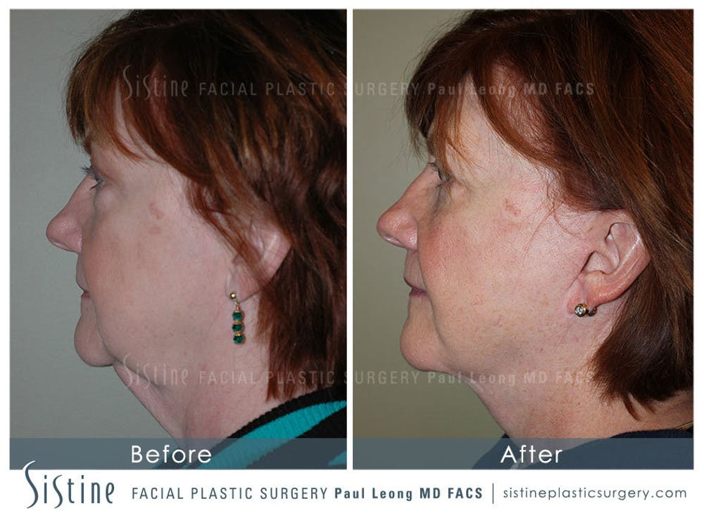 Facelift Gallery - Patient 4883638 - Image 5