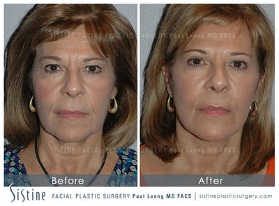 Facelift Gallery - Patient 4883639 - Image 1