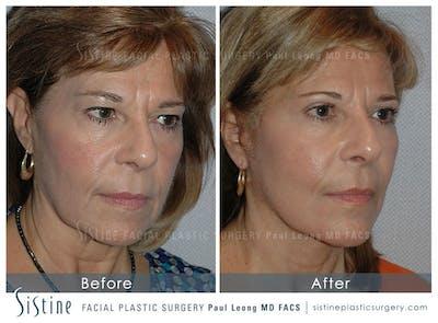 Facelift Gallery - Patient 4883639 - Image 2