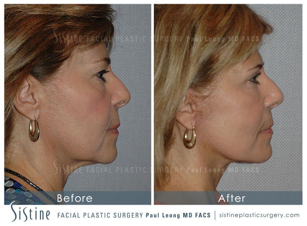 Facelift Gallery - Patient 4883639 - Image 3