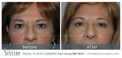 Facelift Gallery - Patient 4883639 - Image 4