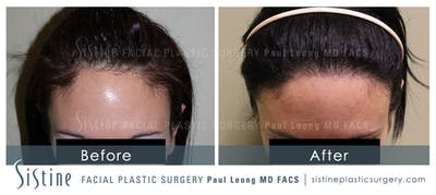 Hair Transplant Gallery - Patient 4883728 - Image 1