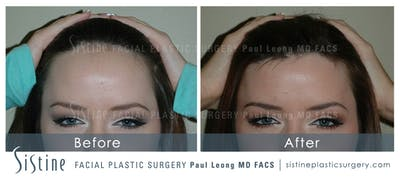 Hair Transplant Gallery - Patient 4883729 - Image 1