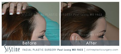 Hair Transplant Gallery - Patient 4883729 - Image 2