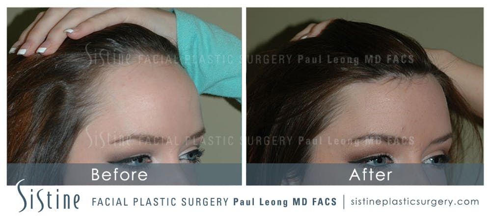 Hair Transplant Gallery - Patient 4883729 - Image 3