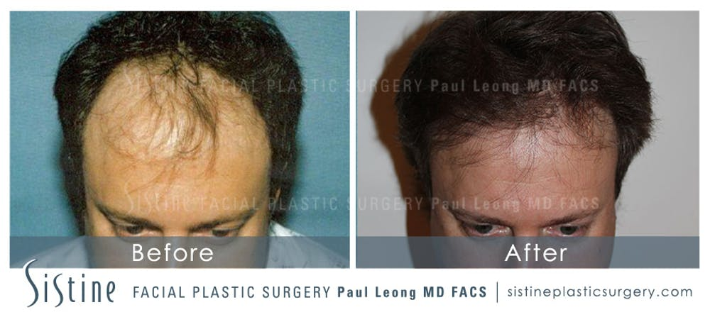 Hair Transplant Gallery - Patient 4883730 - Image 1
