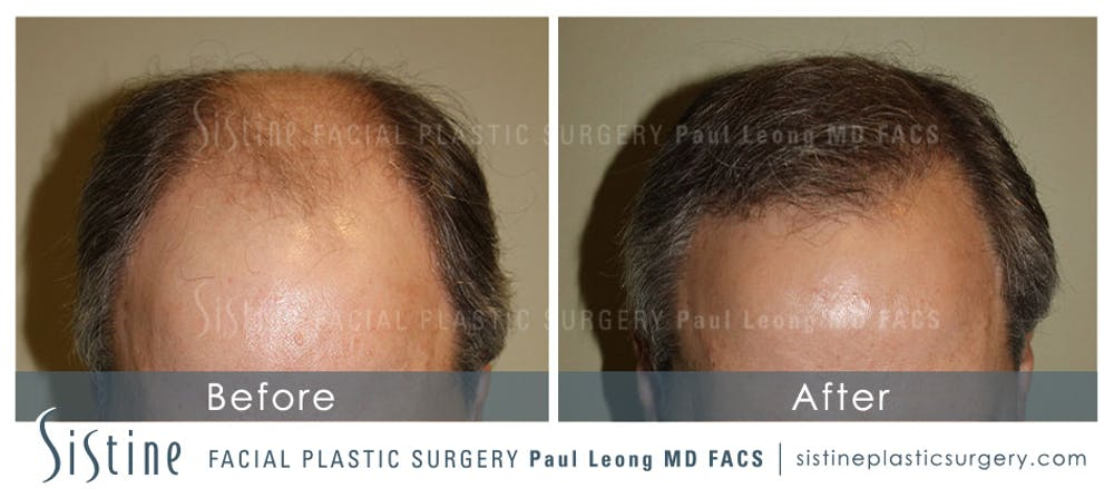 Hair Transplant Gallery - Patient 4883731 - Image 1