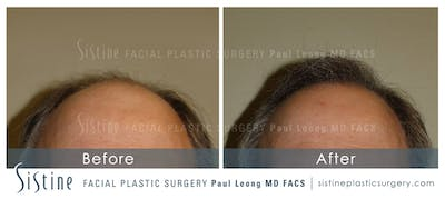 Hair Transplant Gallery - Patient 4883731 - Image 2