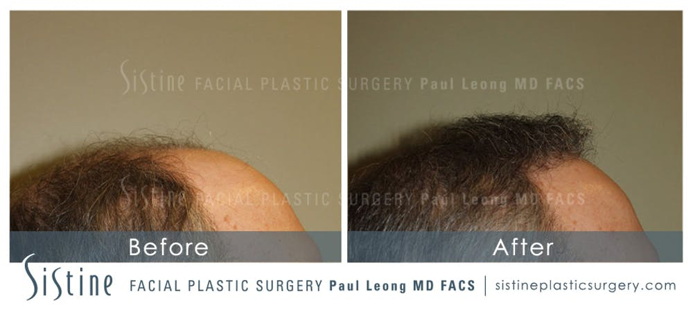 Hair Transplant Gallery - Patient 4883731 - Image 3