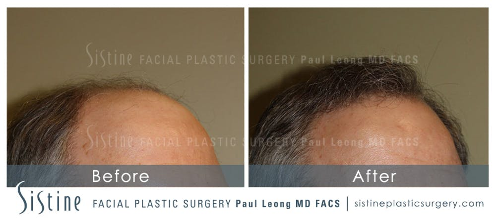 Hair Transplant Gallery - Patient 4883731 - Image 4