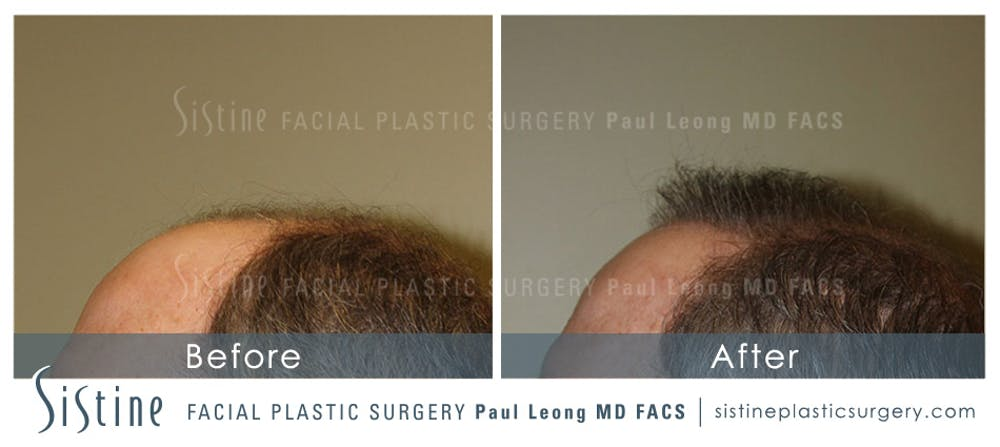 Hair Transplant Gallery - Patient 4883731 - Image 5