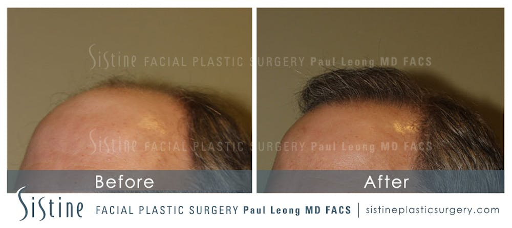 Hair Transplant Gallery - Patient 4883731 - Image 6