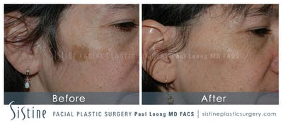 Photofacial Gallery - Patient 4883737 - Image 1