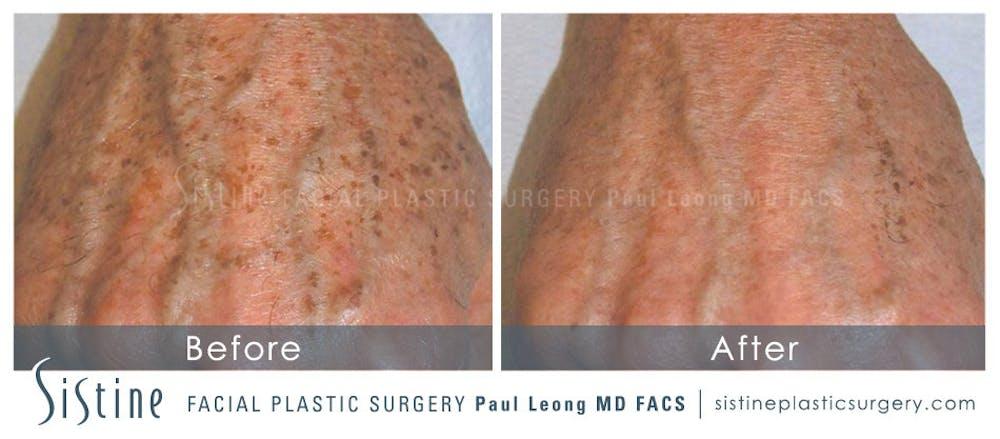 Photofacial Gallery - Patient 4883742 - Image 1