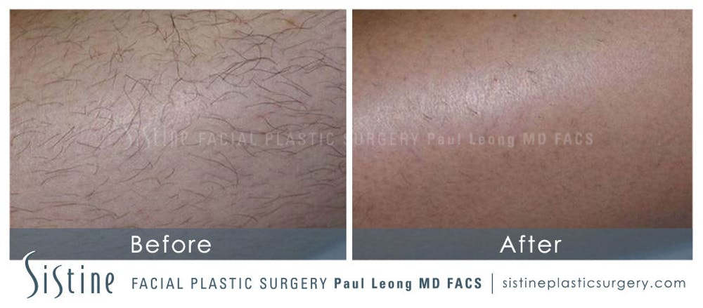 Laser Hair Removal Gallery - Patient 4883743 - Image 1