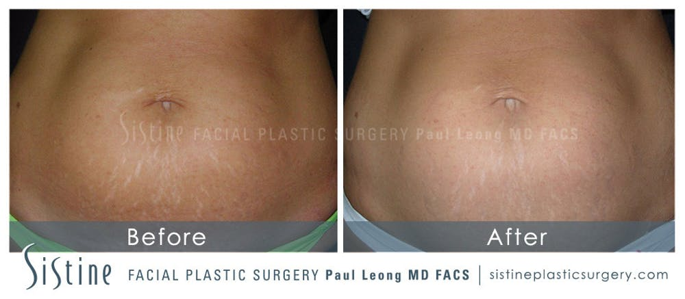 Stretch Marks Gallery - Patient 4883744 - Image 1