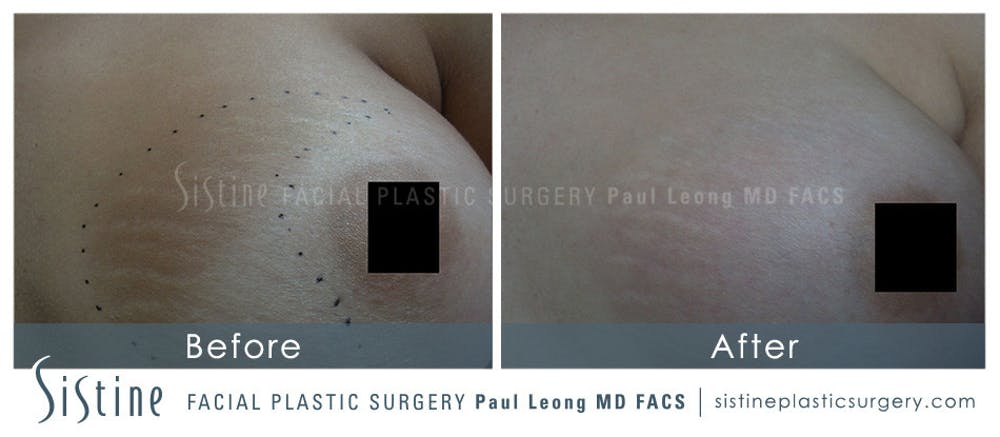 Stretch Marks Gallery - Patient 4883745 - Image 1