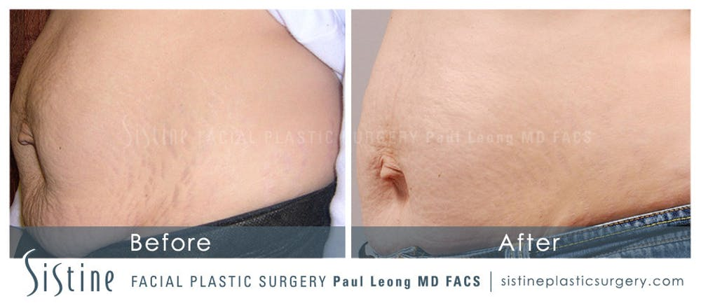 Stretch Marks Gallery - Patient 4883746 - Image 1