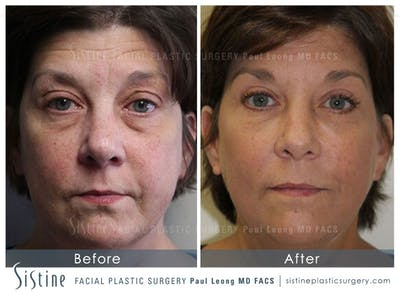 Ultherapy™ Gallery - Patient 4883748 - Image 1