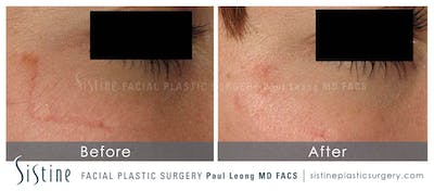 Scar/Wrinkle Removal Gallery - Patient 4883756 - Image 1