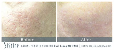 Scar/Wrinkle Removal Gallery - Patient 4883757 - Image 1