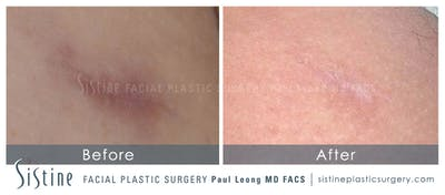 Scar/Wrinkle Removal Gallery - Patient 4883758 - Image 1