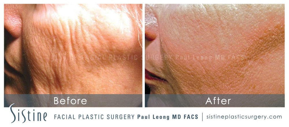 Scar/Wrinkle Removal Gallery - Patient 4883759 - Image 1