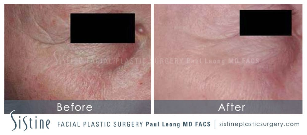 Scar/Wrinkle Removal Gallery - Patient 4883760 - Image 1
