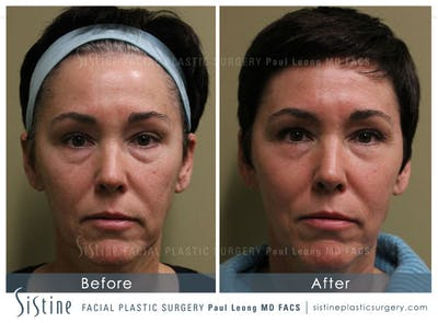 Scar/Wrinkle Removal Gallery - Patient 4883761 - Image 1