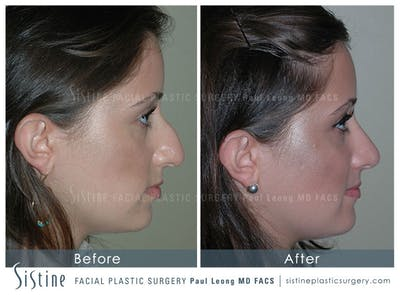 Rhinoplasty Gallery - Patient 4883788 - Image 1