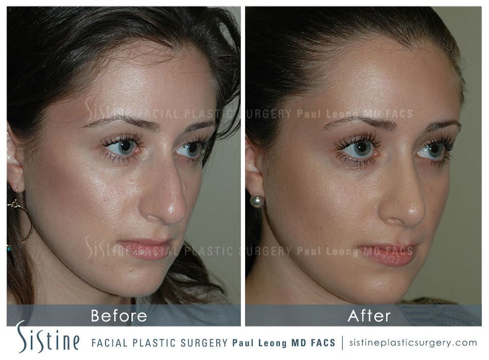 Rhinoplasty Gallery - Patient 4883788 - Image 2