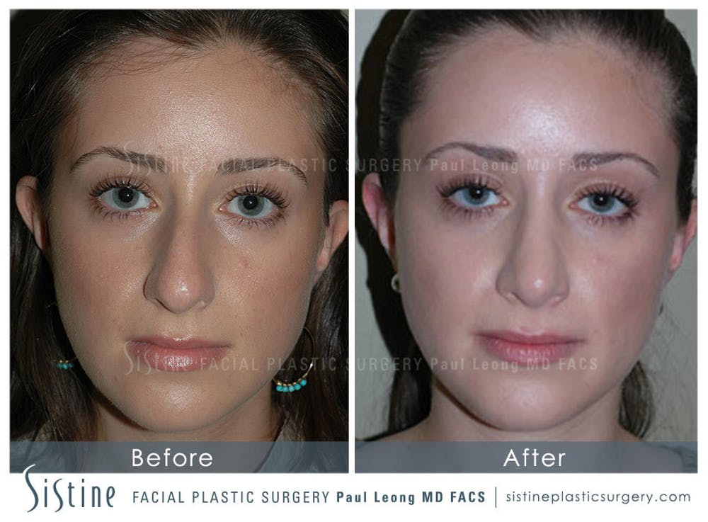 Rhinoplasty Gallery - Patient 4883788 - Image 3