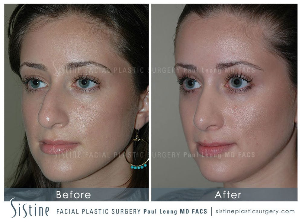 Rhinoplasty Gallery - Patient 4883788 - Image 4