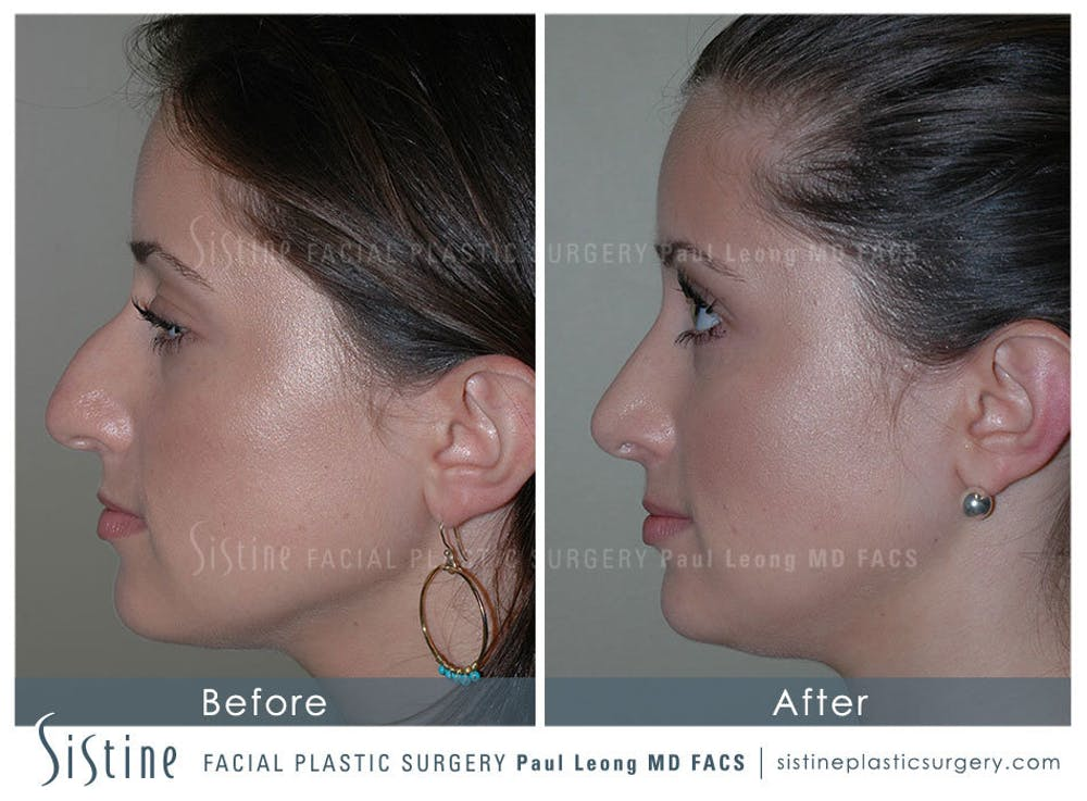 Rhinoplasty Gallery - Patient 4883788 - Image 5